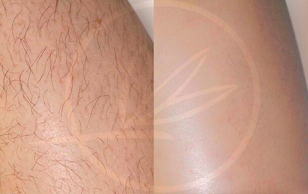 Лазерная эпиляция Light Sheer Duet — удаление волос навсегда